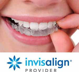 Invisalign is discreet, removable, compatible with your natural teeth and easy to use